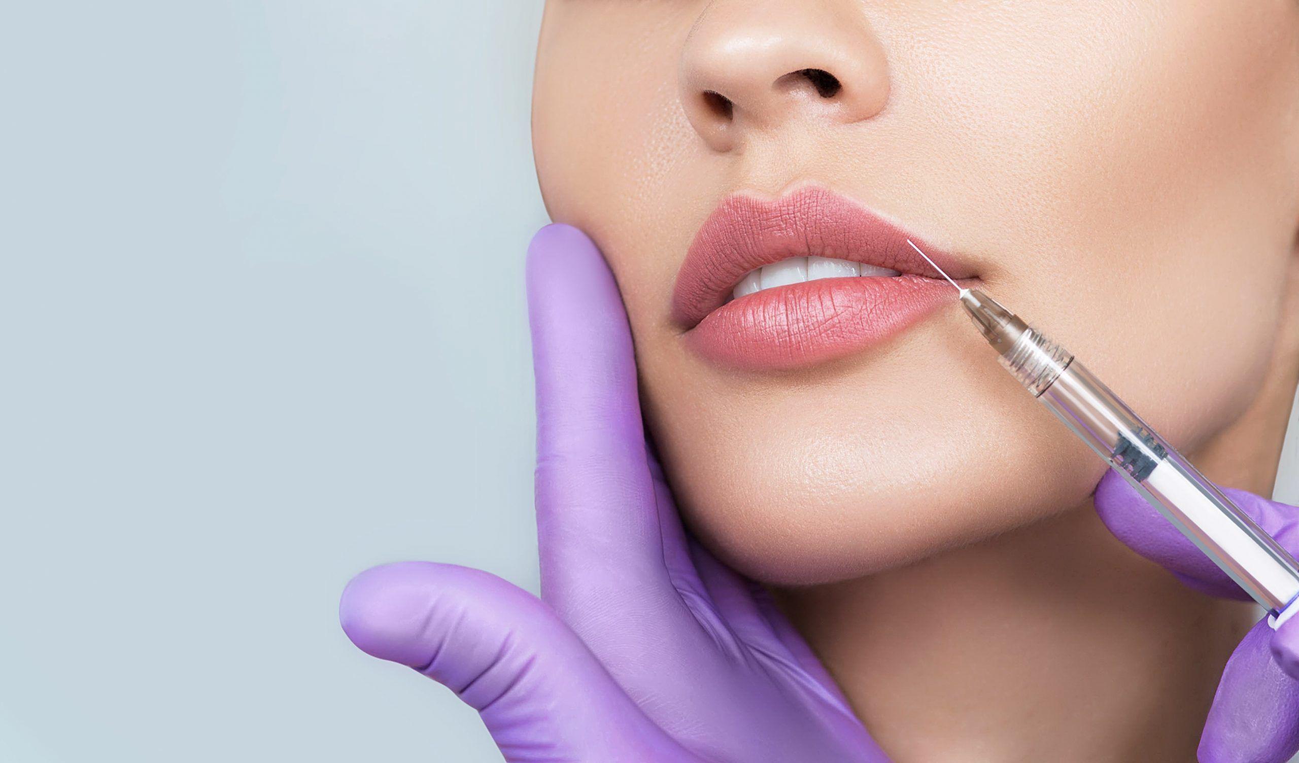 Lippenvergroesserung Mira-Beau