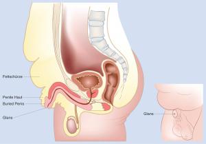 vergrabener Penis Seite vor OP | MIRA-BEAU